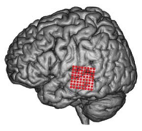 Recording sites in the posterior superior temporal gyrus (From Pasley et al., 2012)